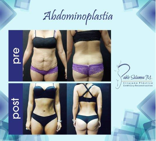 Some before and after photos of Dr. Salamea's work.